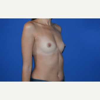 25-34 year old woman treated with Breast Augmentation before 3334695