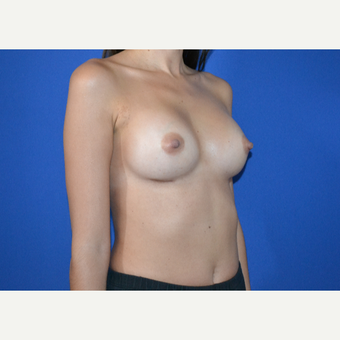 25-34 year old woman treated with Breast Augmentation after 3334695