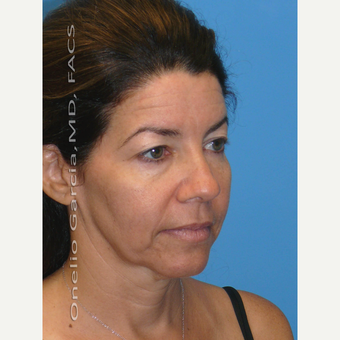 35-44 year old woman treated with Facelift before 3008500