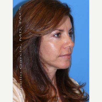 35-44 year old woman treated with Facelift after 3008500