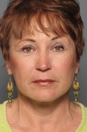 Brow Lift & Facelift after 338481