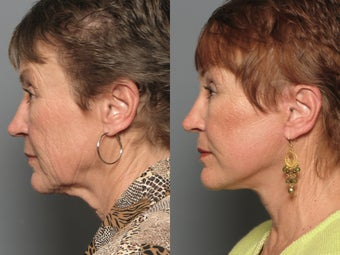 Brow Lift & Facelift 338481