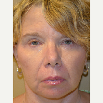 65-74 year old woman treated with Facelift and Lower Blepharoplasty after 3371194