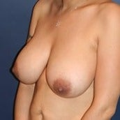 35-44 year old woman treated with Breast Implant Removal before 1564099