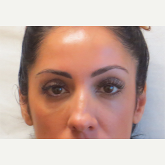 35-44 year old woman treated with Restylane under the eyes after 3381410