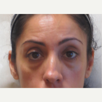 35-44 year old woman treated with Restylane under the eyes before 3381410