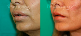 45-54 year old woman treated with Lip Reduction before 2403741