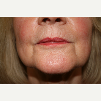 55-64 year old woman treated with Juvederm for her marionette lines before 3185464