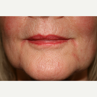 55-64 year old woman treated with Juvederm for her marionette lines after 3185464