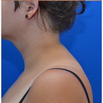 Buffalo Hump Reduction with Liposculpture after 3804222