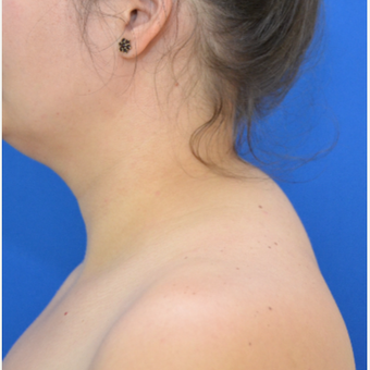 Buffalo Hump Reduction with Liposculpture before 3804222