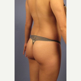 18-24 year old woman treated with Brazilian Butt Lift before 2458829
