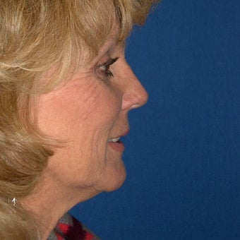 55-64 year old woman treated with Facelift 1645105