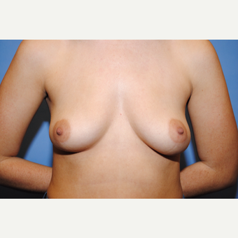 25-34 year old woman treated with Breast Augmentation before 3763038