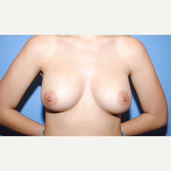 25-34 year old woman treated with Breast Augmentation after 3763038