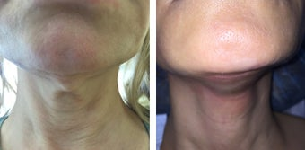 45-54 year old woman treated with Ultherapy after 3332650