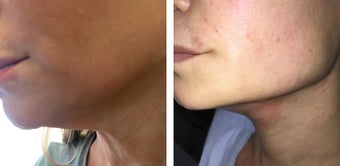 45-54 year old woman treated with Ultherapy before 3332650