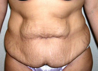 Abdominoplasty in Women before 1218932