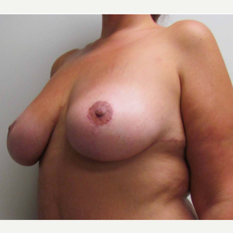 Breast Lift for this 39 Year Old Woman after 3092984