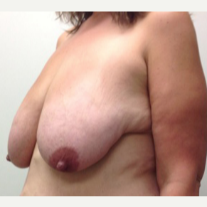 Breast Lift for this 39 Year Old Woman before 3092984