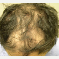 35 year old man treated with FUE Hair Transplant before 3724516