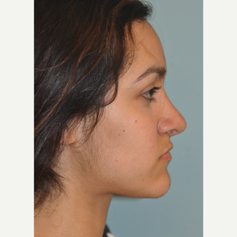 18-24 year old woman treated with Septo/Rhinoplasty after 3168653