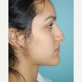 18-24 year old woman treated with Septo/Rhinoplasty before 3168653