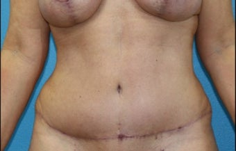 45-54 year old woman treated with Tummy Tuck after 3203788