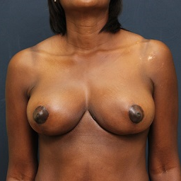 35-44 year old woman treated with Breast Reduction after 3343860