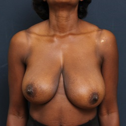 35-44 year old woman treated with Breast Reduction before 3343860