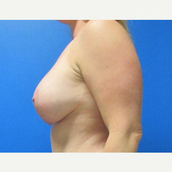 36 Year old Breast Augmentation with Lift after 3702832