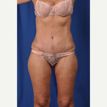 52 year-old woman desired a mini tummy tuck with liposuction after 2381040