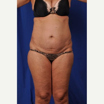 52 year-old woman desired a mini tummy tuck with liposuction before 2381040