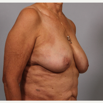 58 year old woman with somewhat large breasts, poor shape. Treated with breast reshaping. before 3420111
