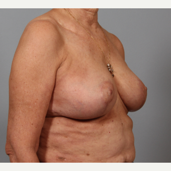 58 year old woman with somewhat large breasts, poor shape. Treated with breast reshaping. after 3420111