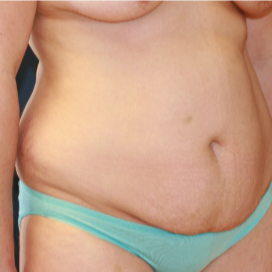 35-44 year old woman treated with Tummy Tuck before 3554380