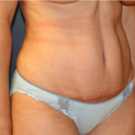 35-44 year old woman treated with Tummy Tuck after 3554380