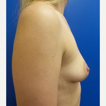 25-34 year old woman treated with Breast Augmentation before 3781548