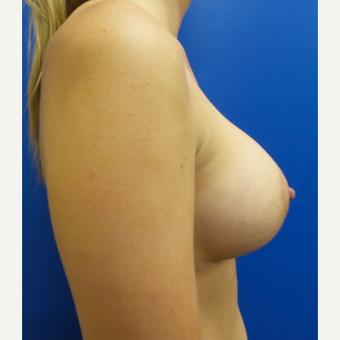 25-34 year old woman treated with Breast Augmentation after 3781548