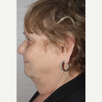 65-74 year old woman treated with Facelift before 3629406