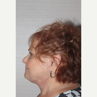 65-74 year old woman treated with Facelift after 3629406