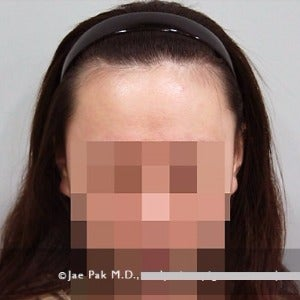 18-24 year old woman treated with Forehead Reduction before 2020522