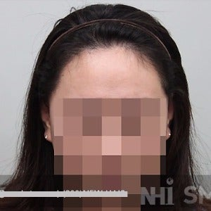 18-24 year old woman treated with Forehead Reduction after 2020522