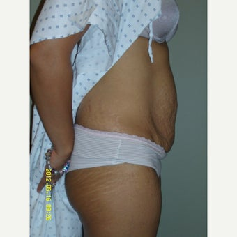 25-34 year old woman treated with Tummy Tuck 1745348