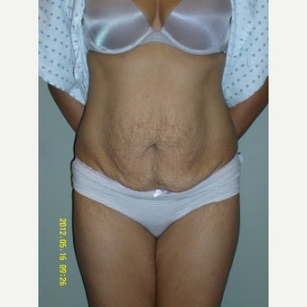 25-34 year old woman treated with Tummy Tuck before 1745348