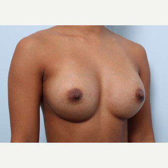 Breast Augmentation after 3459944