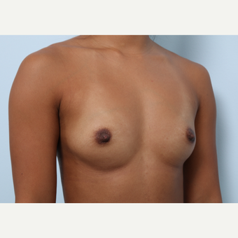 Breast Augmentation before 3459944