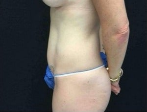 35-44 year old woman treated with Tummy Tuck after 3219189