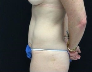 35-44 year old woman treated with Tummy Tuck before 3219189