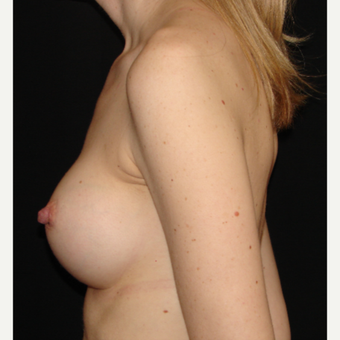 35-44 year old woman treated with Breast Implants after 3303981